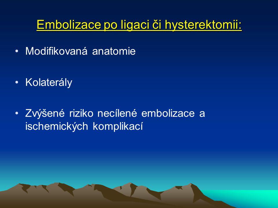 Embolizace po ligaci či hysterektomii: Modifikovaná anatomie Kolaterály Zvýšené riziko necílené embolizace a ischemických komplikací