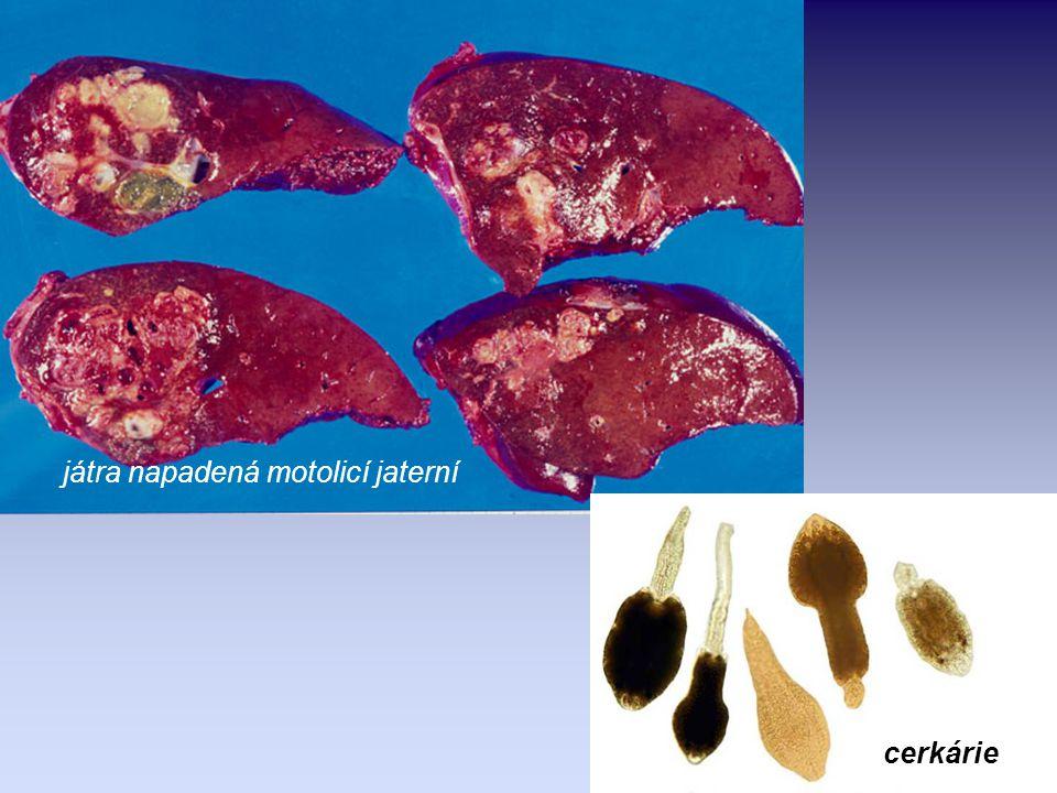 motolice kopinatá ( Dicrocoelium dendriticum ) vývoj probíhá mimo vodní prostředí, mezihostitelem je suchozemský plž a mravenec.