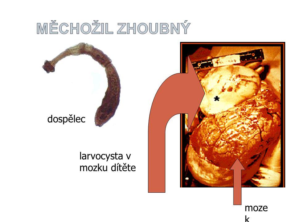 dospělec larvocysta v mozku dítěte moze k