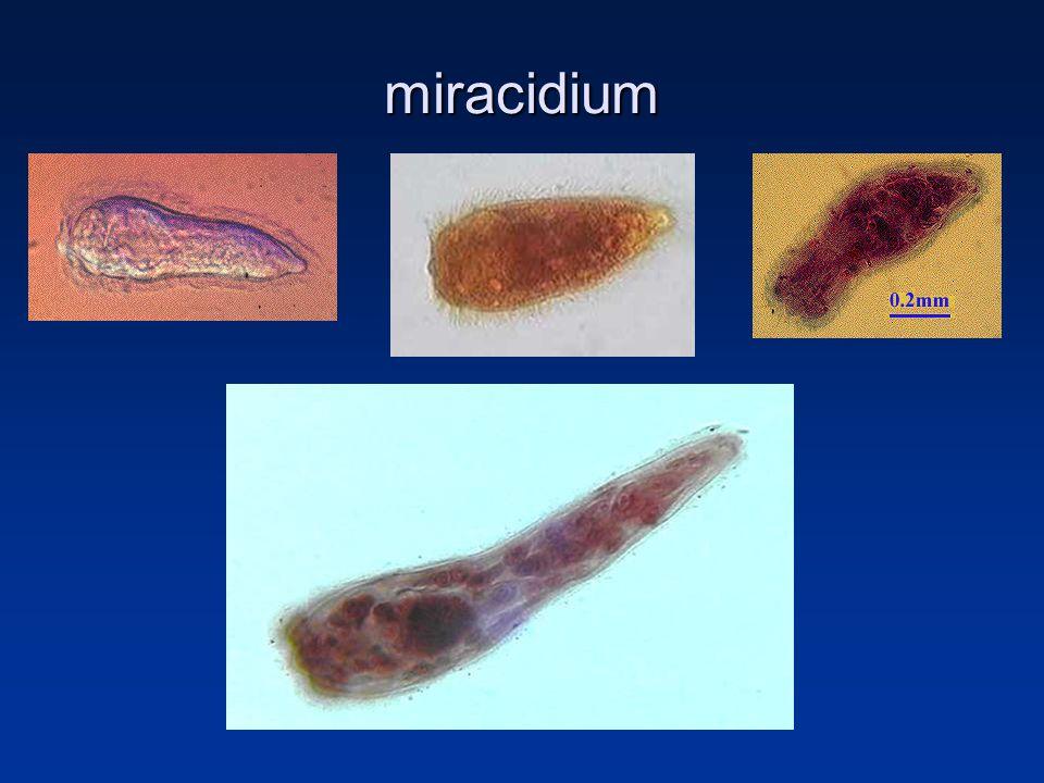miracidium