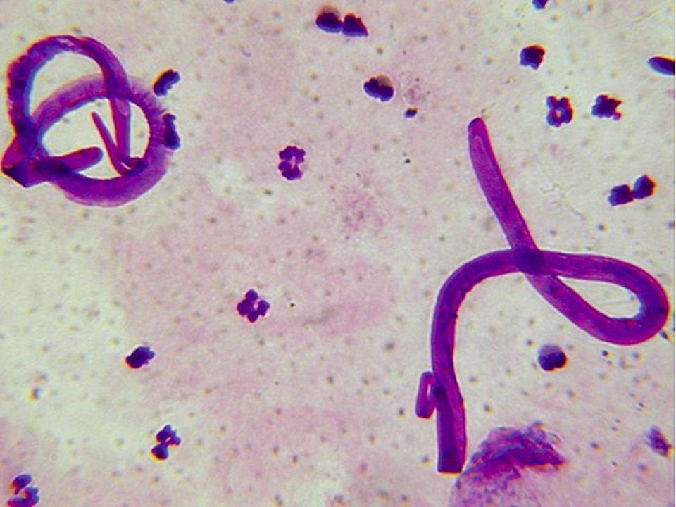 Vlasovec mízní ►D►D►D►Dospělý vlasovec mízní žije v mízních cévách, které ucpává.