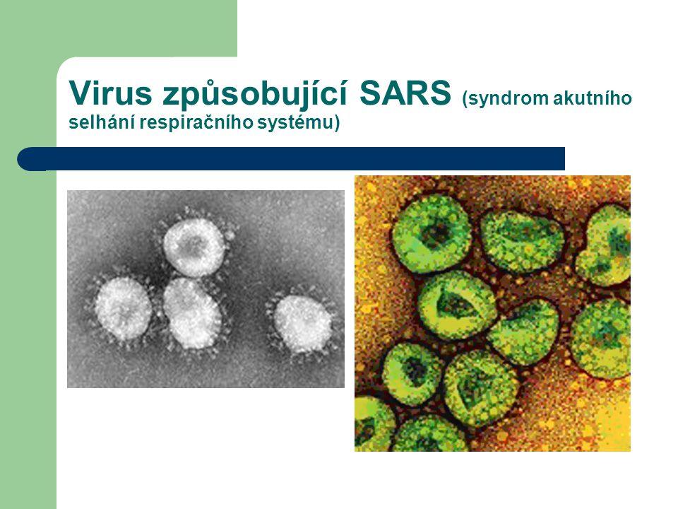 Virus způsobující SARS (syndrom akutního selhání respiračního systému)