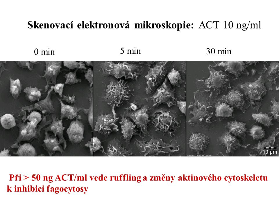 Skenovací elektronová mikroskopie: ACT 10 ng/ml 0 min 5 min 30 min Při > 50 ng ACT/ml vede ruffling a změny aktinového cytoskeletu k inhibici fagocytosy