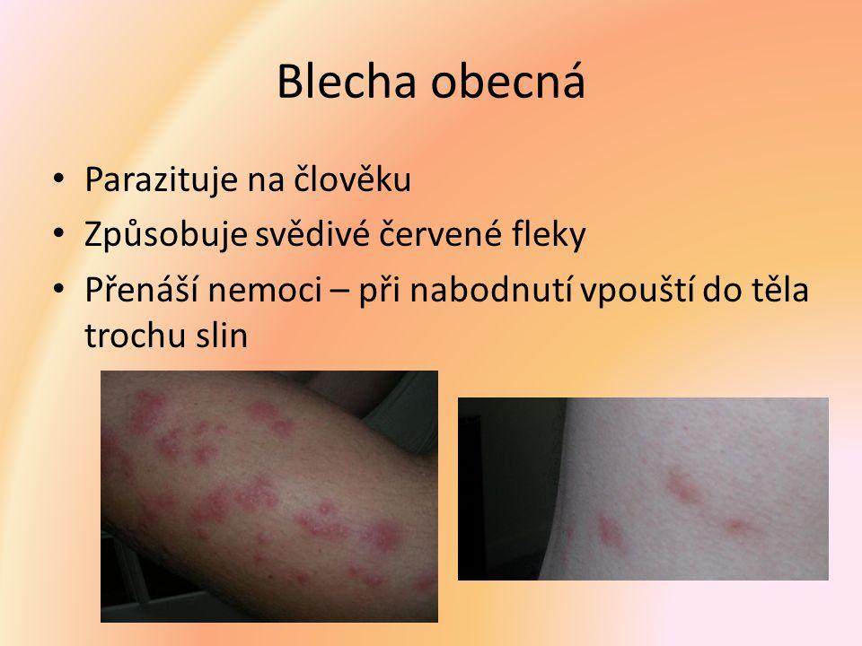 Blecha obecná Parazituje na člověku Způsobuje svědivé červené fleky Přenáší nemoci – při nabodnutí vpouští do těla trochu slin