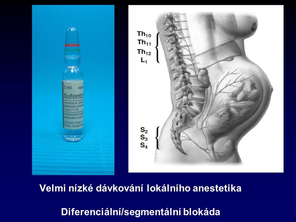 Velmi nízké dávkování lokálního anestetika Diferenciální/segmentální blokáda