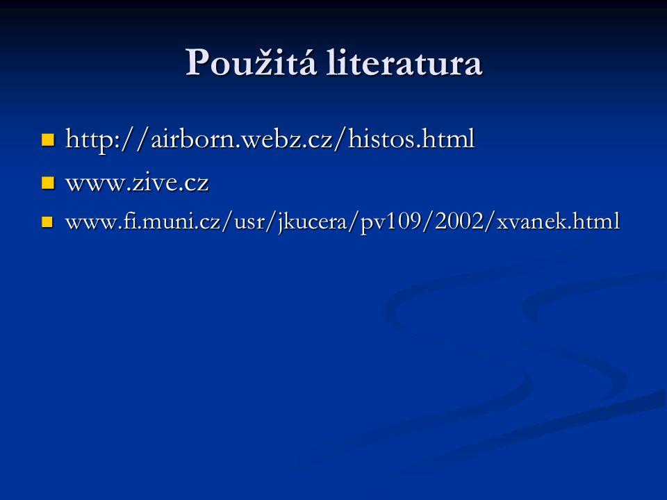 Použitá literatura http://airborn.webz.cz/histos.html http://airborn.webz.cz/histos.html www.zive.cz www.zive.cz www.fi.muni.cz/usr/jkucera/pv109/2002/xvanek.html www.fi.muni.cz/usr/jkucera/pv109/2002/xvanek.html