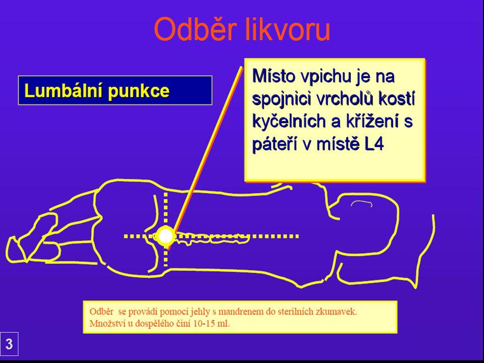 Odběr likvoruVYŠETŘENÍ LIKVORU KATEŘINA MRÁZOVÁVYŠETŘENÍ VYŠETŘENÍ LIKVORU MRÁZOVÁKATEŘINA MRÁZOVÁ33Místo vpichu je na spojnici vrcholů kostí kyčelníc