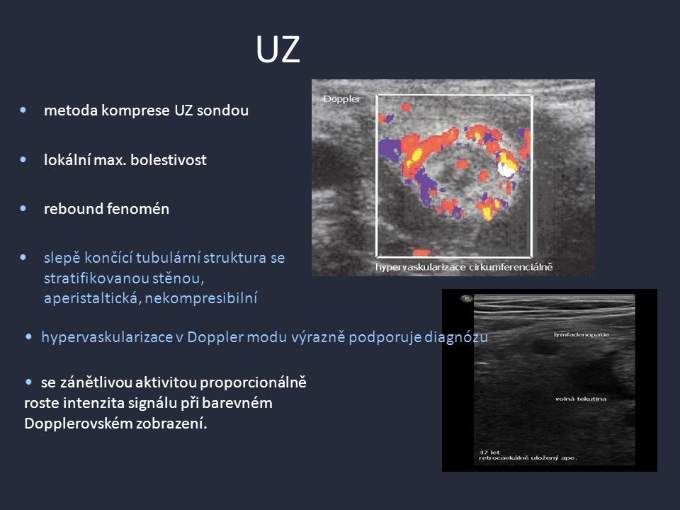 UZ metoda komprese UZ sondou lokální max.