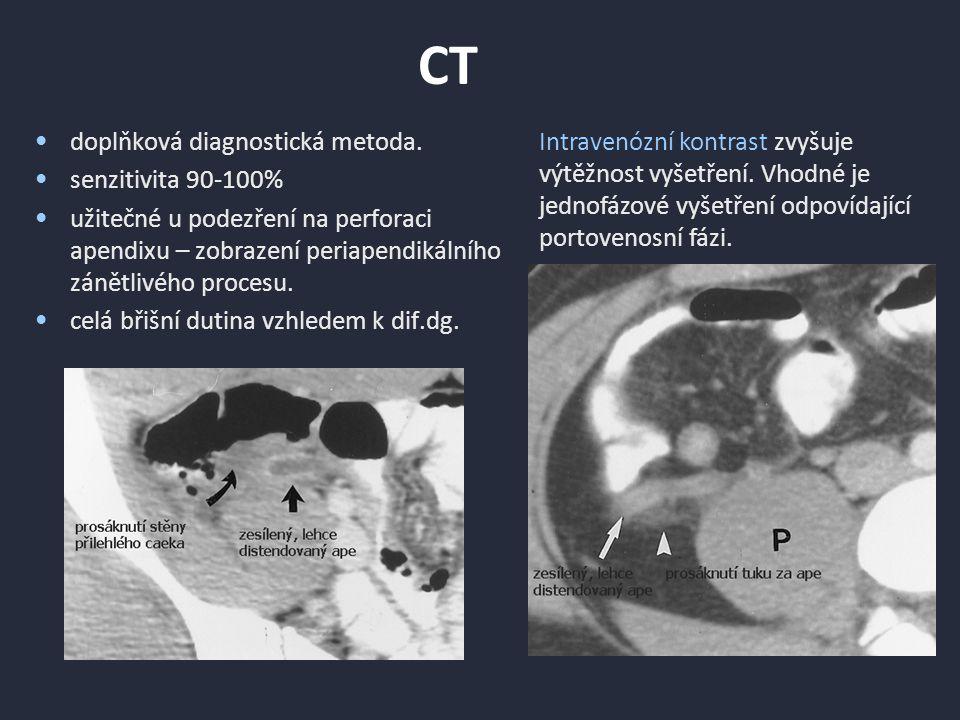 Crohnova choroba Zesílení mukózy, stratifikace stěny při aktivním onemocnění.