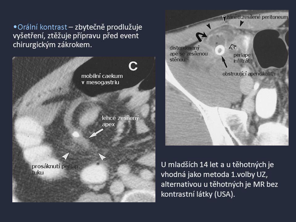Infekční ileitida Yersinia enterocolitica 32y, RLQP, horečka, krvavý průjem CT nález ukazuje značně zesílené terminální ileum se stratifikací stěny.