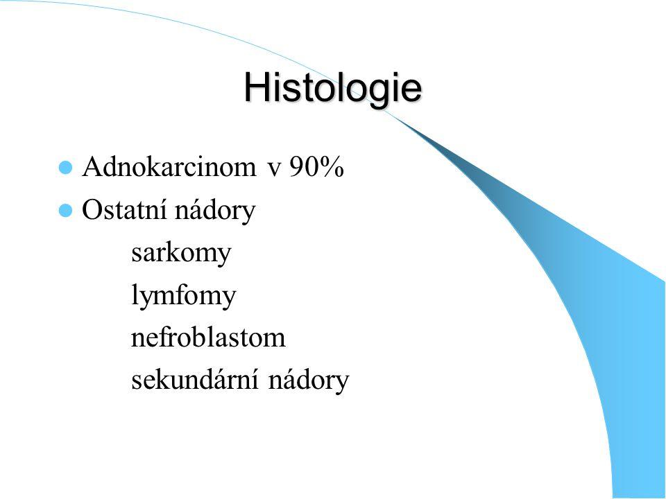 Histologie Adnokarcinom v 90% Ostatní nádory sarkomy lymfomy nefroblastom sekundární nádory
