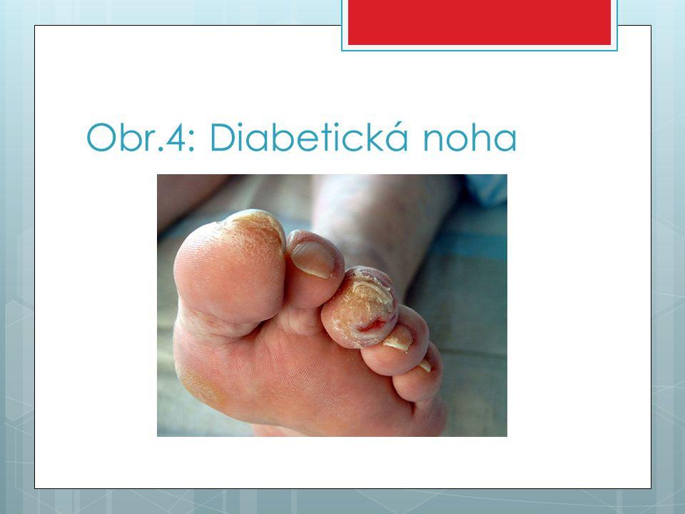 Opakování pro žáky  1.Mezi nejčastější příznaky diabetu mellitu patří: (alespoň 4)  2.