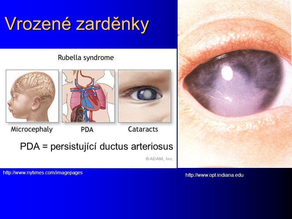 Vrozené zarděnky http://www.nytimes.com/imagepages PDA = persistující ductus arteriosus http://www.opt.indiana.edu