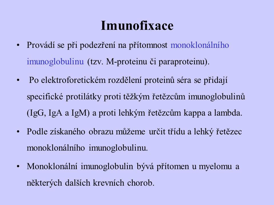 Imunofixace Provádí se při podezření na přítomnost monoklonálního imunoglobulinu (tzv. M-proteinu či paraproteinu). Po elektroforetickém rozdělení pro