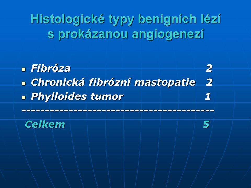 Histologické typy benigních lézí s prokázanou angiogenezí Fibróza 2 Fibróza 2 Chronická fibrózní mastopatie 2 Chronická fibrózní mastopatie 2 Phylloid
