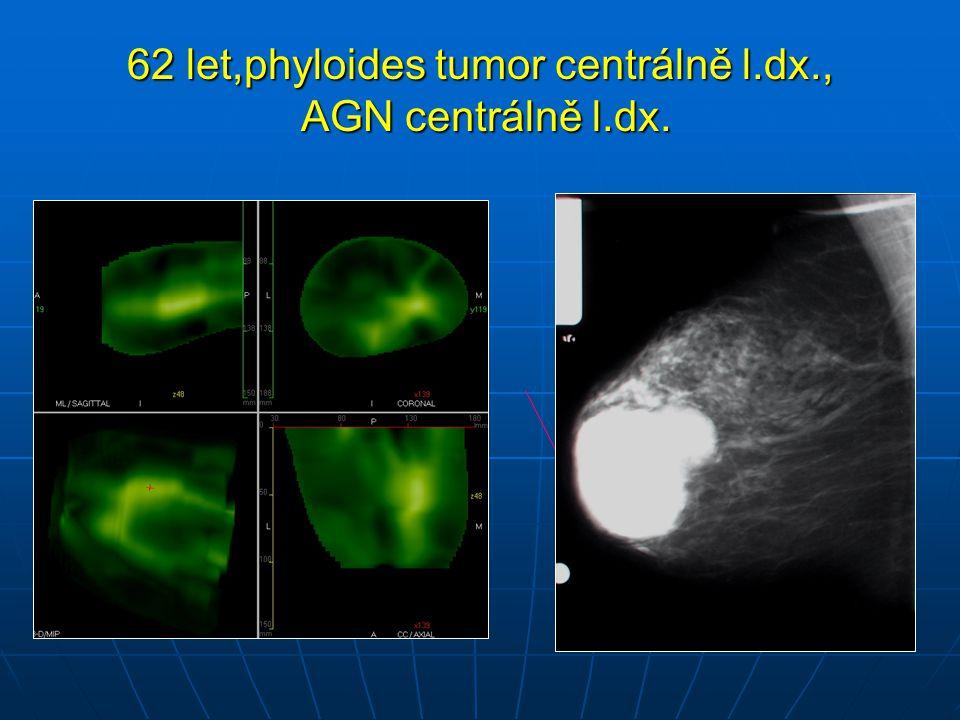 62 let,phyloides tumor centrálně l.dx., AGN centrálně l.dx.