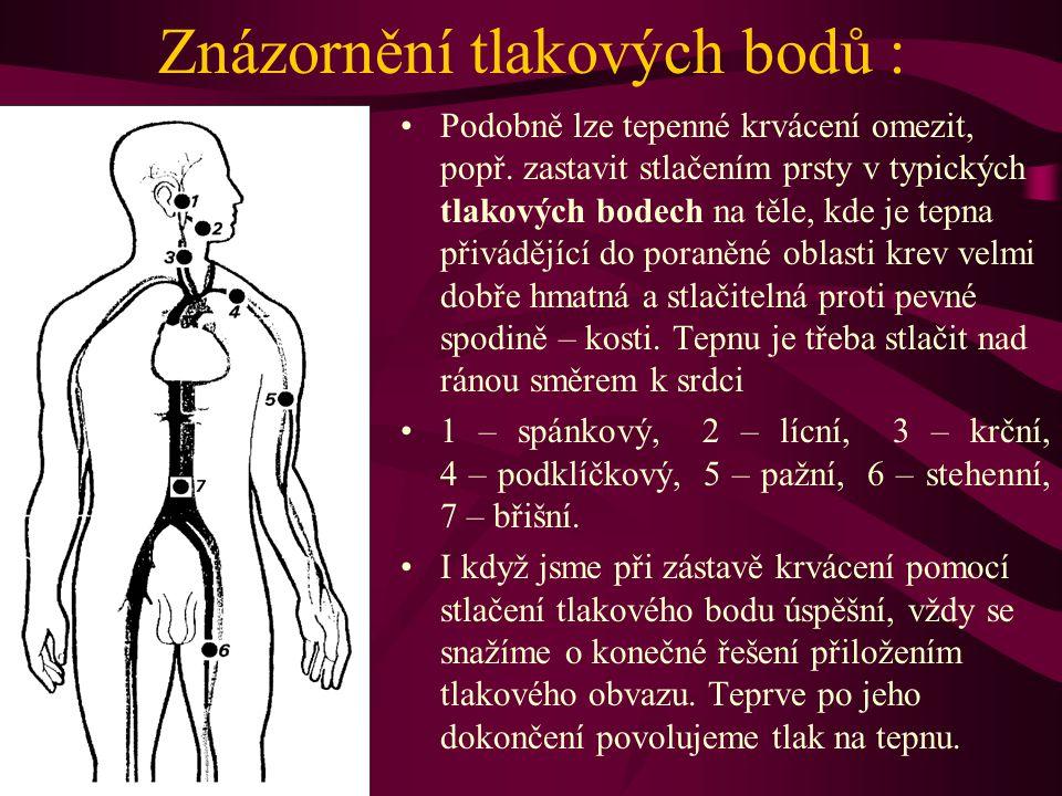 Znázornění tlakových bodů : Podobně lze tepenné krvácení omezit, popř. zastavit stlačením prsty v typických tlakových bodech na těle, kde je tepna při