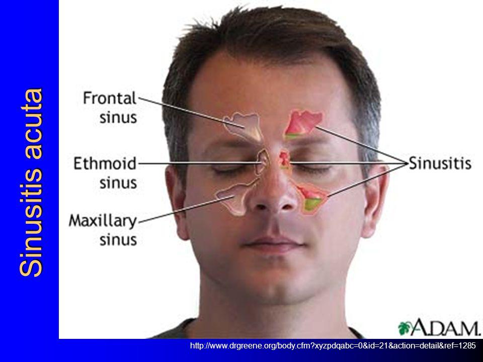 Sinusitis acuta http://www.drgreene.org/body.cfm?xyzpdqabc=0&id=21&action=detail&ref=1285