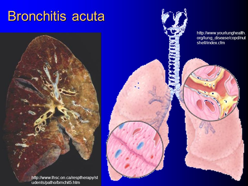 Bronchitis acuta http://www.yourlunghealth. org/lung_disease/copd/nut shell/index.cfm http://www.lhsc.on.ca/resptherapy/st udents/patho/brnchit5.htm
