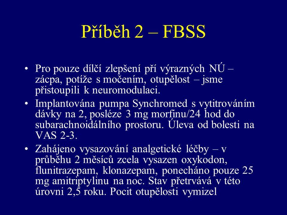 Příběh 2 – FBSS Pro pouze dílčí zlepšení pří výrazných NÚ – zácpa, potíže s močením, otupělost – jsme přistoupili k neuromodulaci. Implantována pumpa