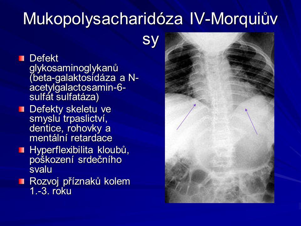 Mukopolysacharidóza IV-Morquiův sy Defekt glykosaminoglykanů (beta-galaktosidáza a N- acetylgalactosamin-6- sulfát sulfatáza) Defekty skeletu ve smysl