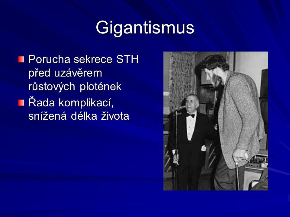 Gigantismus Porucha sekrece STH před uzávěrem růstových plotének Řada komplikací, snížená délka života