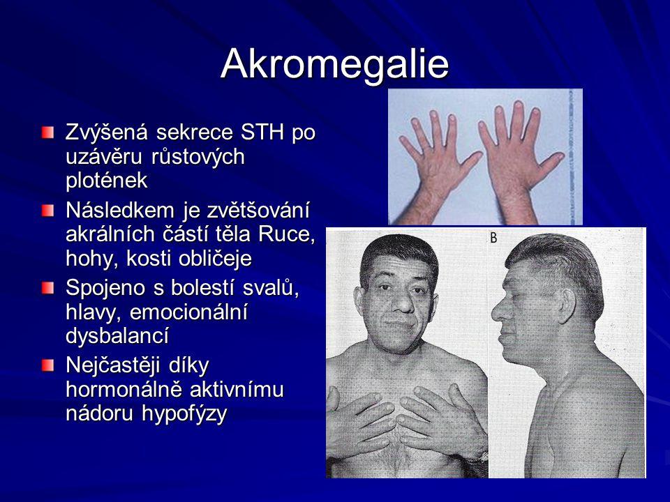 Akromegalie Zvýšená sekrece STH po uzávěru růstových plotének Následkem je zvětšování akrálních částí těla Ruce, hohy, kosti obličeje Spojeno s bolest