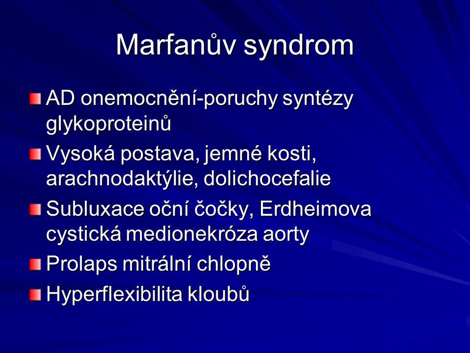 Marfanův syndrom AD onemocnění-poruchy syntézy glykoproteinů Vysoká postava, jemné kosti, arachnodaktýlie, dolichocefalie Subluxace oční čočky, Erdhei