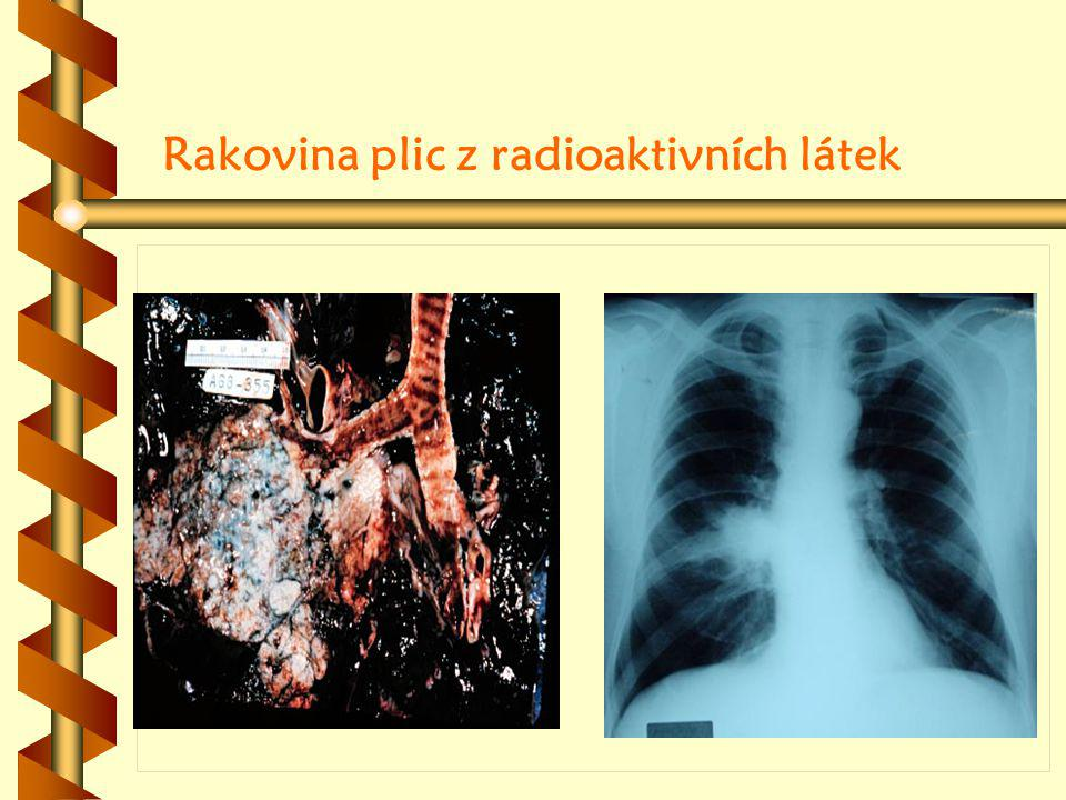 Rakovina plic z radioaktivních látek Histologicky Klinickým obrazem