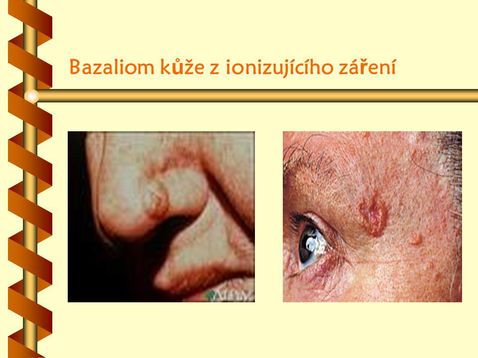Bazaliom k ů že z ionizujícího zá ř ení