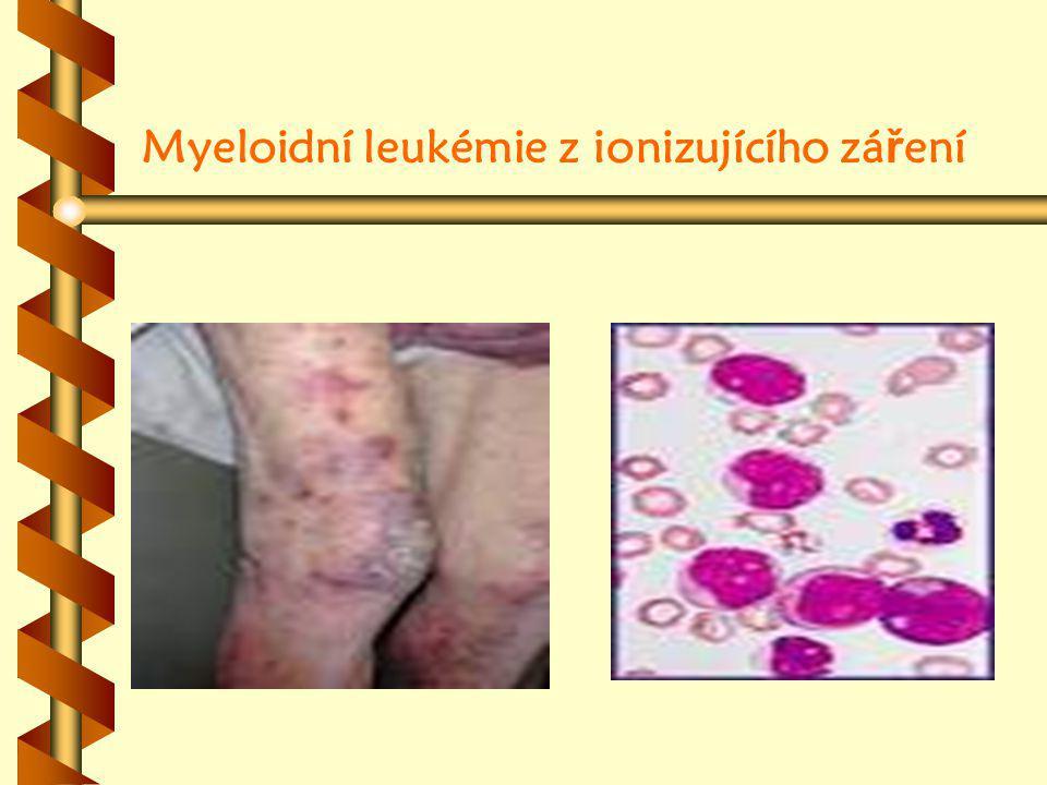 Myeloidní leukémie z ionizujícího zá ř ení