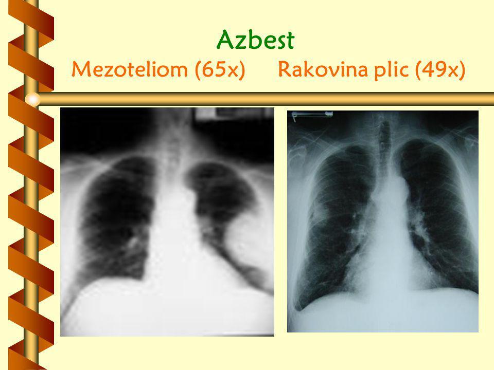 Azbest Mezoteliom (65x) Rakovina plic (49x)