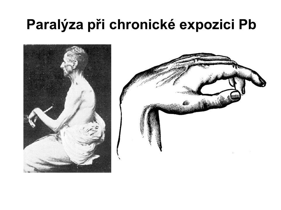 17 Olovo (Pb) Toxické účinky Pb - dospělí vznik periferní neuropatie (konc. 40  g/dL) - poškození PNS demielinizace (poškození Schwannových buněk) a
