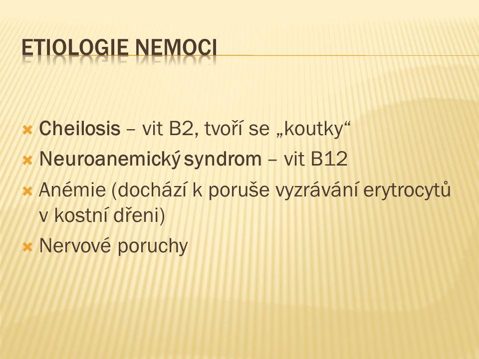 """ Cheilosis – vit B2, tvoří se """"koutky""""  Neuroanemický syndrom – vit B12  Anémie (dochází k poruše vyzrávání erytrocytů v kostní dřeni)  Nervové po"""