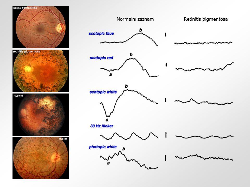Retinitis pigmentosaNormální záznam