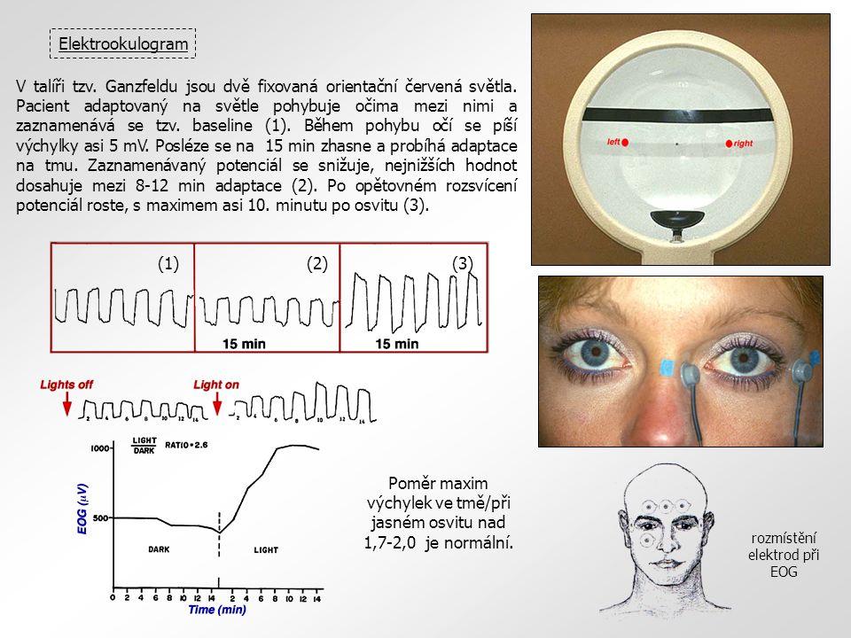 Elektrookulogram rozmístění elektrod při EOG V talíři tzv. Ganzfeldu jsou dvě fixovaná orientační červená světla. Pacient adaptovaný na světle pohybuj