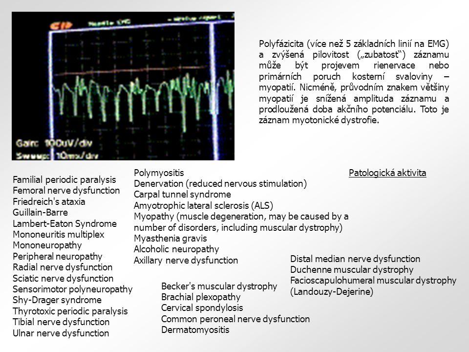 """Polyfázicita (více než 5 základních linií na EMG) a zvýšená pilovitost (""""zubatost"""") záznamu může být projevem rienervace nebo primárních poruch koster"""