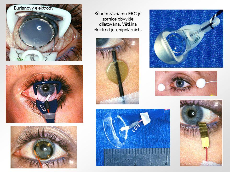 Současné vyšetřovací metody oční elektrofyziologie A) Skotopický elektroretinogram (S-ERG) Je získáván na oku adaptovaném na tmu.