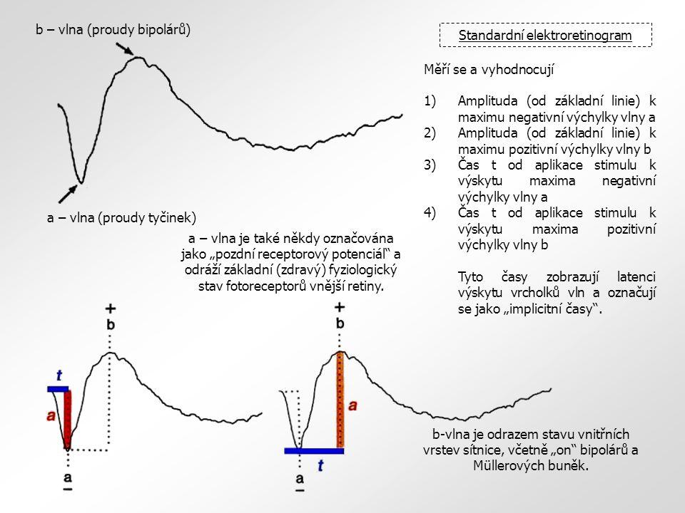 b – vlna (proudy bipolárů) a – vlna (proudy tyčinek) Standardní elektroretinogram Měří se a vyhodnocují 1)Amplituda (od základní linie) k maximu negat