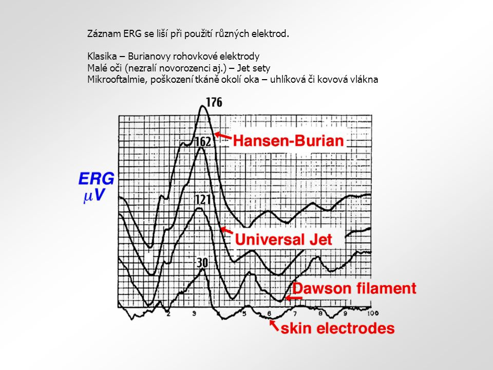 Záznam ERG se liší při použití různých elektrod. Klasika – Burianovy rohovkové elektrody Malé oči (nezralí novorozenci aj.) – Jet sety Mikrooftalmie,