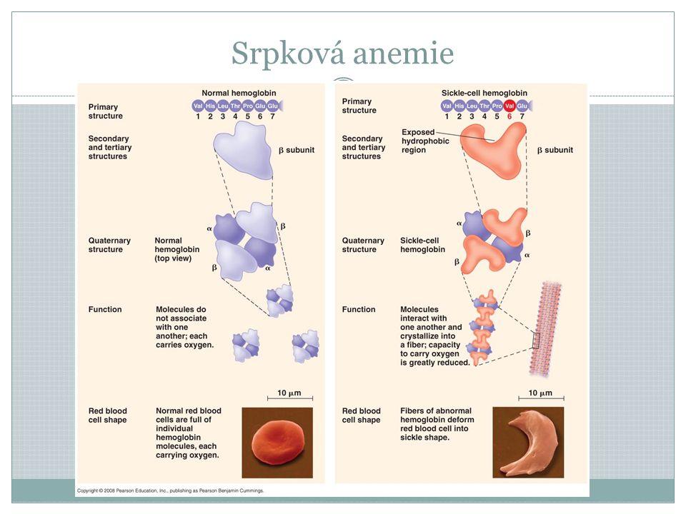 Srpková anemie