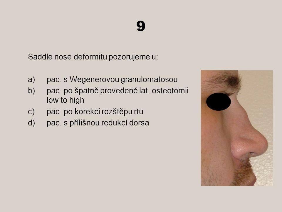 9 Saddle nose deformitu pozorujeme u: a)pac.s Wegenerovou granulomatosou b)pac.