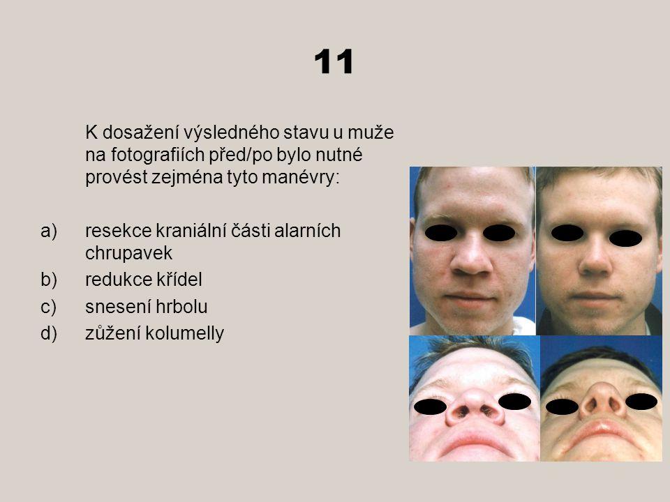 11 K dosažení výsledného stavu u muže na fotografiích před/po bylo nutné provést zejména tyto manévry: a)resekce kraniální části alarních chrupavek b)