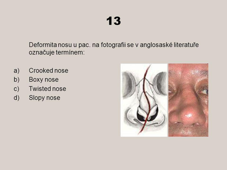 13 Deformita nosu u pac. na fotografii se v anglosaské literatuře označuje termínem: a)Crooked nose b)Boxy nose c)Twisted nose d)Slopy nose