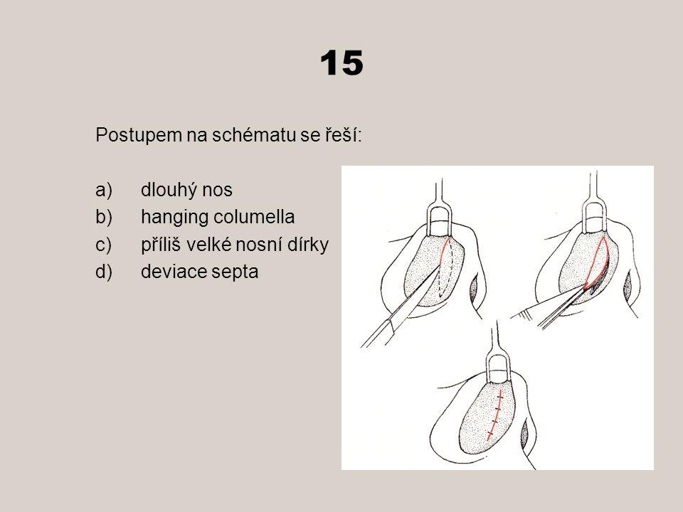 15 Postupem na schématu se řeší: a)dlouhý nos b)hanging columella c)příliš velké nosní dírky d)deviace septa
