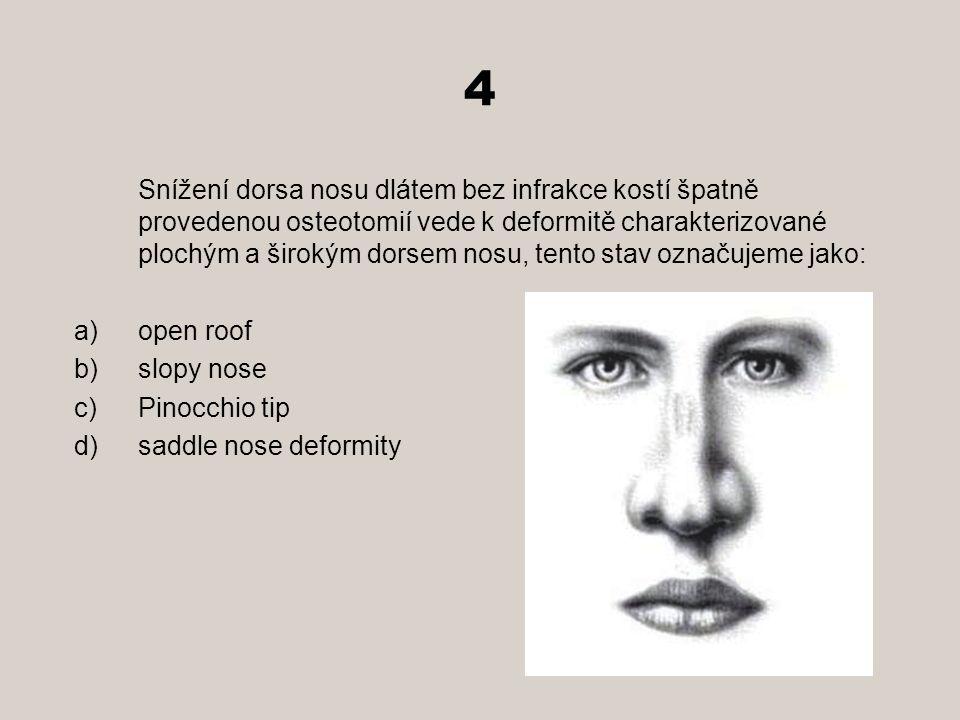 4 Snížení dorsa nosu dlátem bez infrakce kostí špatně provedenou osteotomií vede k deformitě charakterizované plochým a širokým dorsem nosu, tento stav označujeme jako: a)open roof b)slopy nose c)Pinocchio tip d)saddle nose deformity