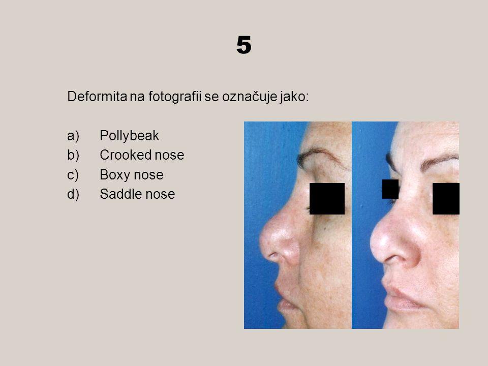 5 Deformita na fotografii se označuje jako: a)Pollybeak b)Crooked nose c)Boxy nose d)Saddle nose