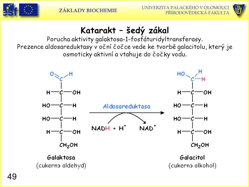 49 Katarakt – šedý zákal Porucha aktivity galaktosa-1-fosfáturidyltransferasy. Prezence aldosareduktasy v oční čočce vede ke tvorbě galacitolu, který