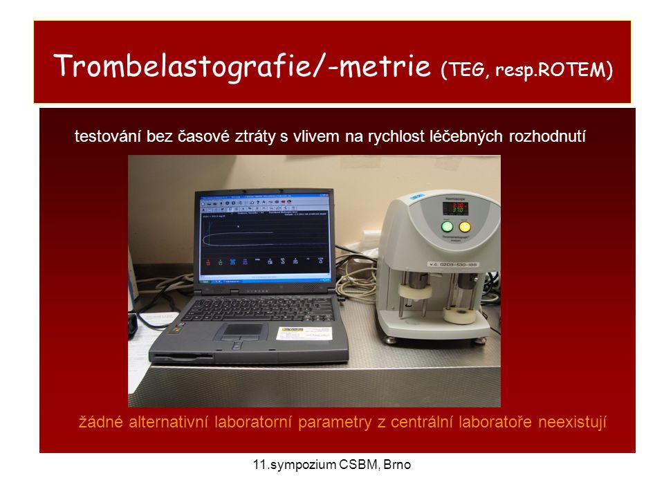 11.sympozium CSBM, Brno Trombelastografie/-metrie (TEG, resp.ROTEM) testování bez časové ztráty s vlivem na rychlost léčebných rozhodnutí žádné altern