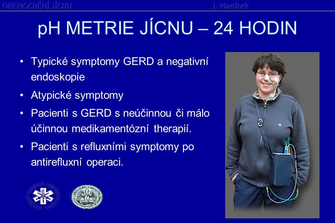 pH METRIE JÍCNU – 24 HODIN Typické symptomy GERD a negativní endoskopie Atypické symptomy Pacienti s GERD s neúčinnou či málo účinnou medikamentózní t
